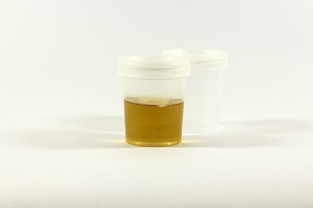 HPU wordt in de urine gemeten