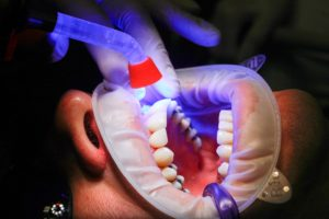 Milieutoxines in materiaal bij de tandarts