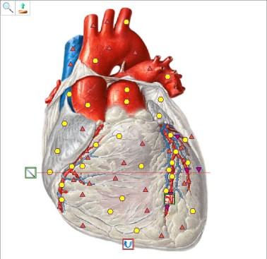 Oberon scan van het hart