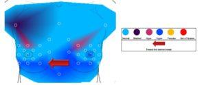 Regulatiethermografie van de borst